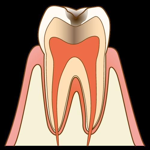 歯の内部まで進⾏したむし歯