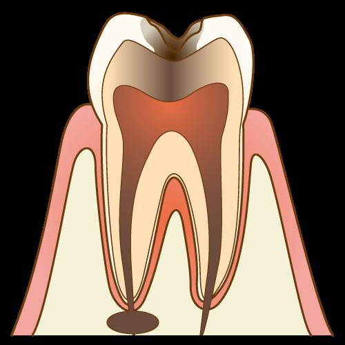 神経まで進⾏したむし歯